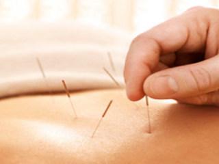针灸治疗腰痛