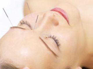 按中医理论来说,人身体所有脏器都会在头部有印射点或线,这就是头针的基本理论。