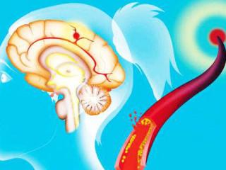 """今天的节目我们从三个不同的话题中,分别引出三种关于脑中风筛查的方式。""""一滴血能不能 筛查出脑中风的风险?""""""""控制好血压就不会患上脑中风吗?""""""""常规体检正常就没有脑中风 的隐患了吗?""""对于这三个问题"""