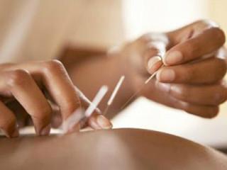 针灸是针法和灸法的总称。针法是指在中医理论的指导下把针具(通常指毫针)按照一定的角度刺入患者体内,运用捻转与提插等针刺手法来对人体特定部位进行刺激从而达到治疗疾病的目的。