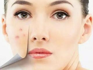 中医祛痘讲究辨证施治,中医认为,面部的小痘痘与血热、肺热、脾胃湿热困阻、肾阴不足都有很  大关系。