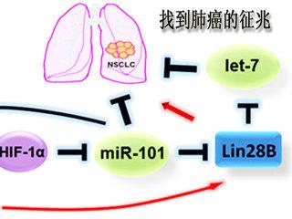 找到肺癌征兆