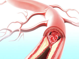 血栓风险从腿看