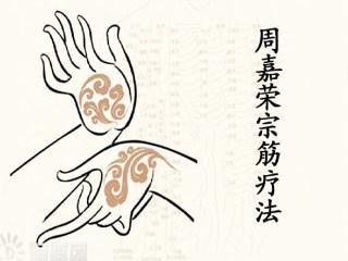 周嘉荣宗筋疗法(二)