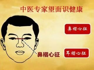 中医专家做客养生——望面识健康_标清
