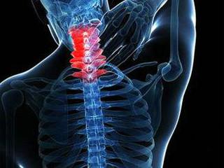 颈椎病又称颈椎综合征,是颈椎骨关节炎、增生性颈椎炎、颈神经根综合征、颈椎间盘脱出症的总称,是一种以退行性病理改变为基础的疾患。