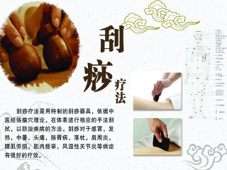 """刮痧是以中医经络腧穴理论为指导,通过特制的刮痧器具和相应的手法,蘸取一定的介质,在体表进行反复刮动、摩擦,使皮肤局部出现红色粟粒状,或暗红色出血点等""""出痧""""变化,从而达到活血透痧的作用。"""